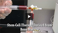 Bone Marrow Stem Cell